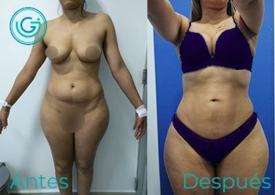 cirugia-plastica-bogota-liposuccion