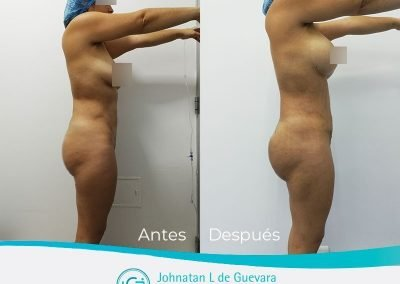 lipoabdominoplastia-fotos-antes-y-despues