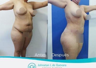 lipoadbominoplastia-bogota-fotos-antes-despues