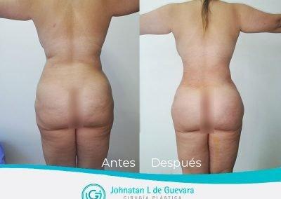 lipoinyeccion-glutea-fotos-antes-y-despues-bogota
