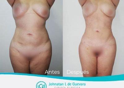 lipoinyeccion-glutea-fotos-antes-y-despues-bogota-colombia