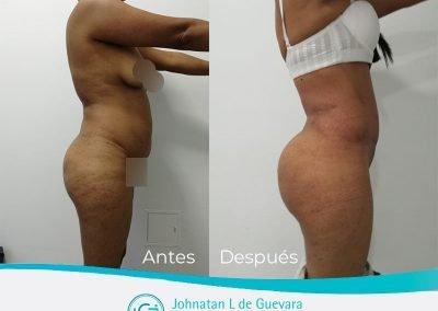 lipotransferencia-glutea-bogota-colombia-fotos-antes-y-despues