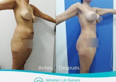 mastopexia-con-implantes-colombia-bogota-antes-y-despues