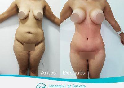 mastopexia-con-implantes-colombia-bogota-fotos-antes-y-despues