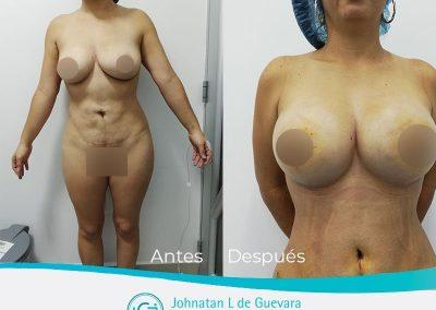 mastopexia-con-implantes-fotos-antes-y-despues